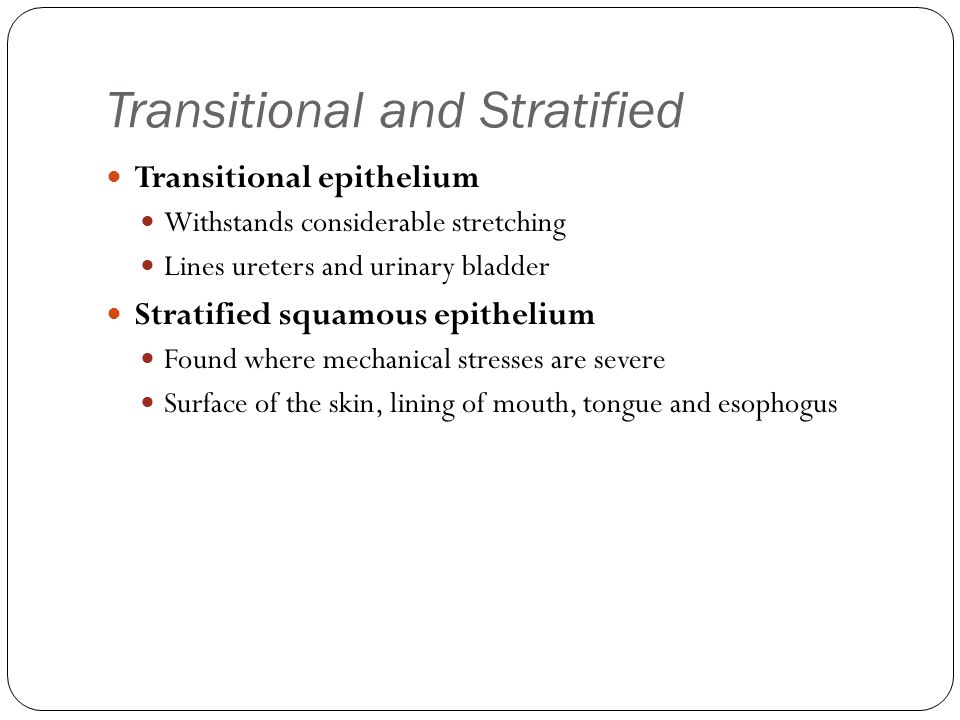 Transitional and Stratified