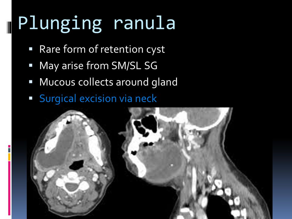 Plunging ranula Rare form of retention cyst May arise from SM/SL SG