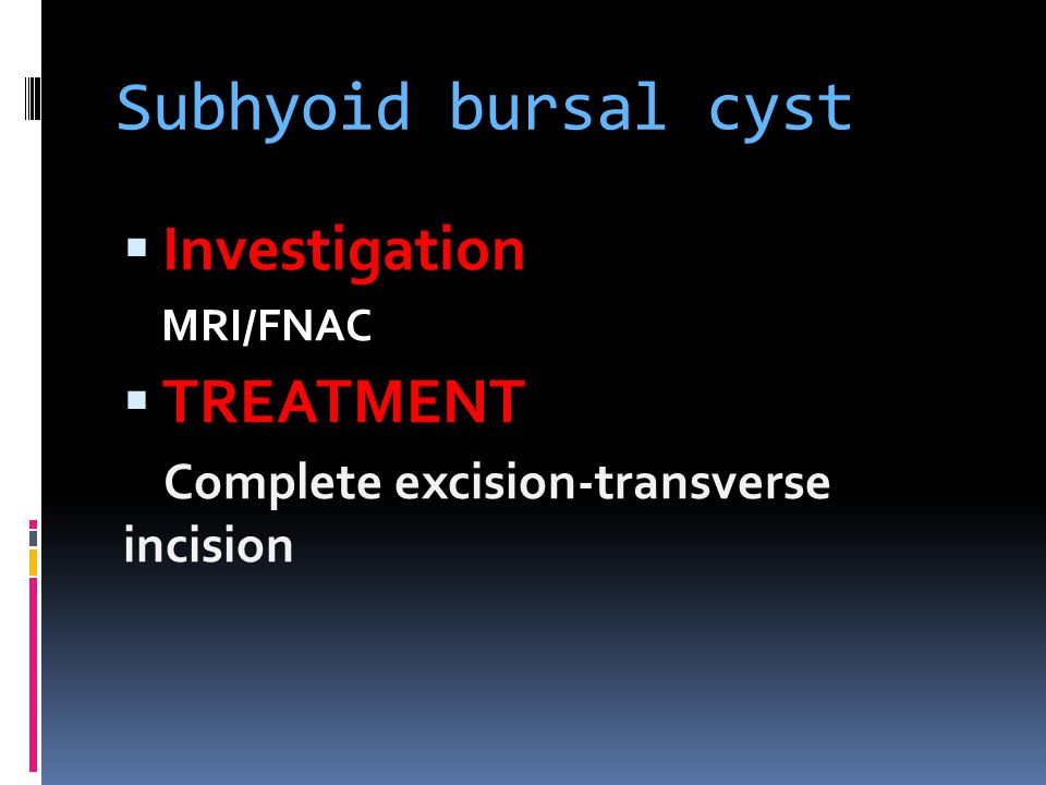 Subhyoid bursal cyst Investigation TREATMENT
