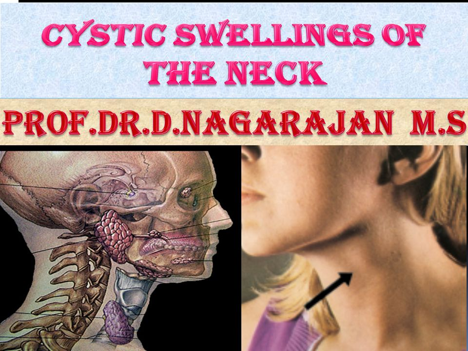 CYSTIC SWELLINGS OF THE NECK