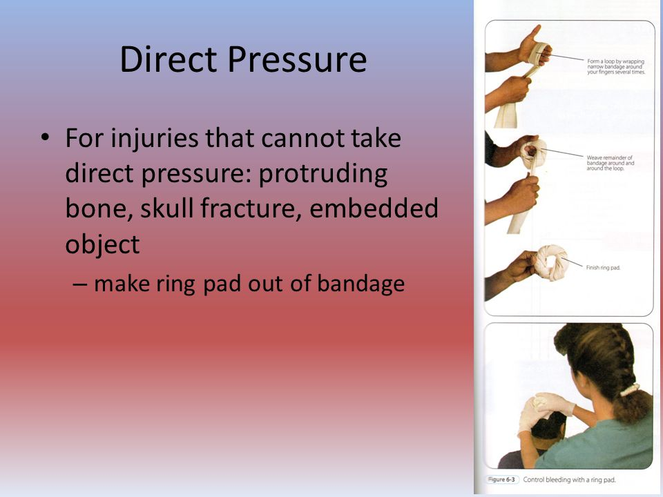 Direct Pressure For injuries that cannot take direct pressure: protruding bone, skull fracture, embedded object.