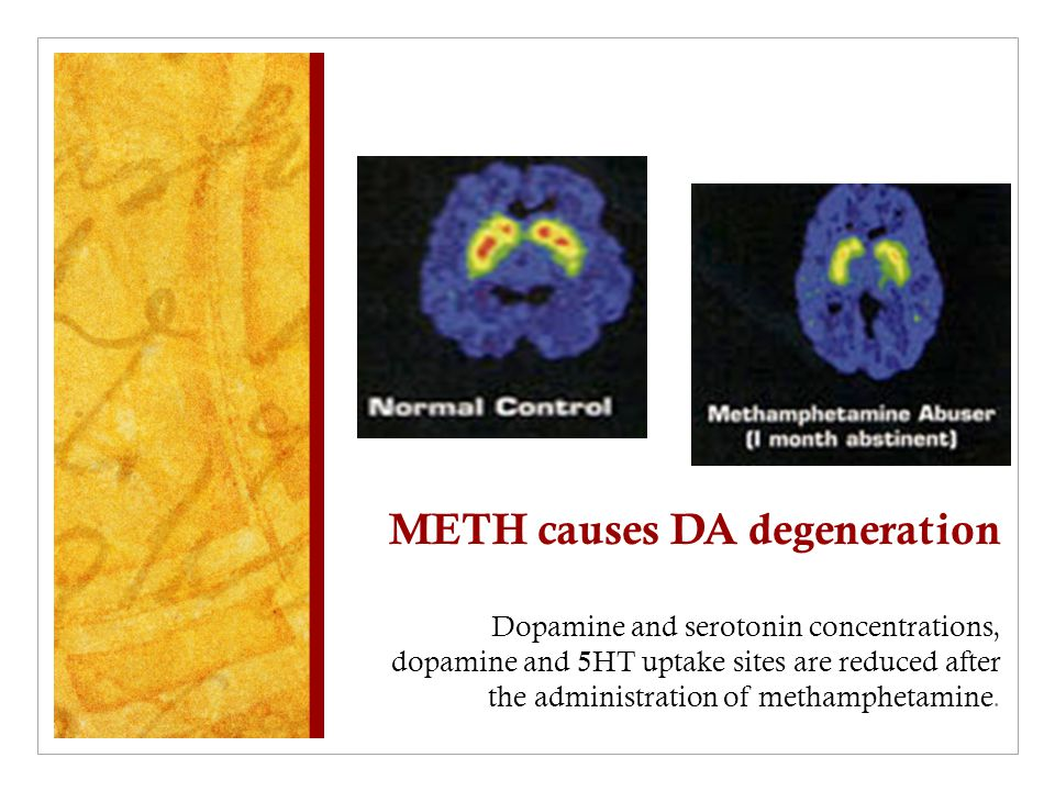 METH causes DA degeneration