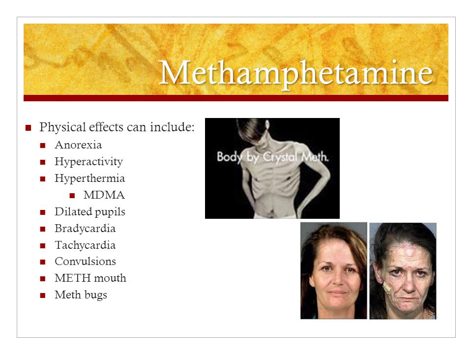 Methamphetamine Physical effects can include: Anorexia Hyperactivity
