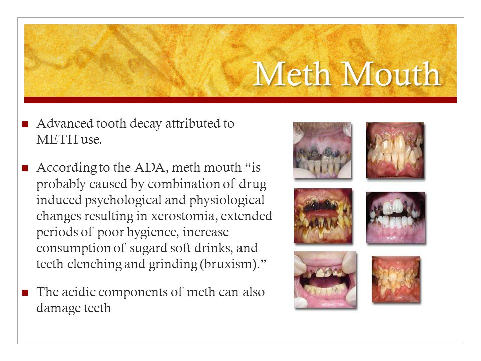 Meth Mouth Advanced tooth decay attributed to METH use.