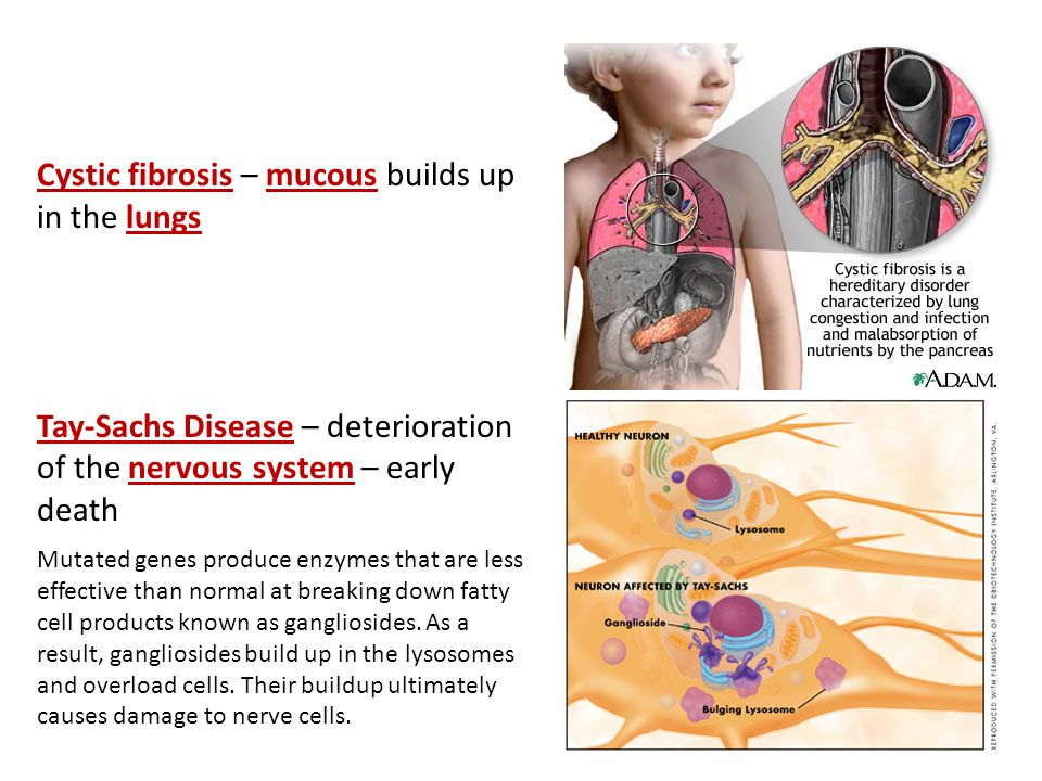 Cystic fibrosis – mucous builds up in the lungs