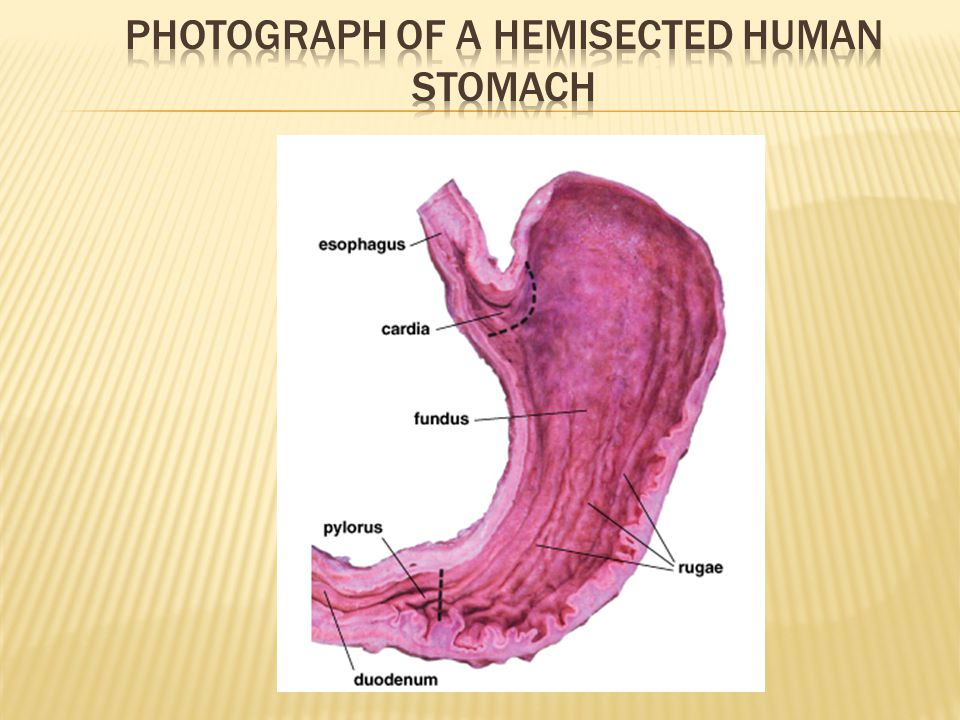 Photograph of a hemisected human stomach