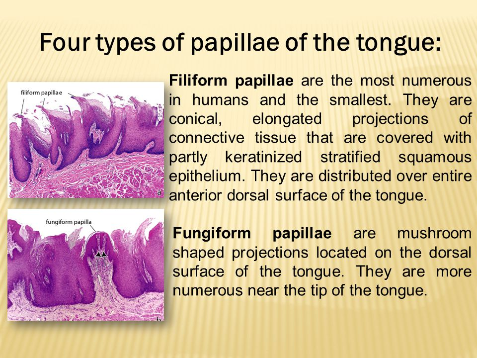 Four types of papillae of the tongue: