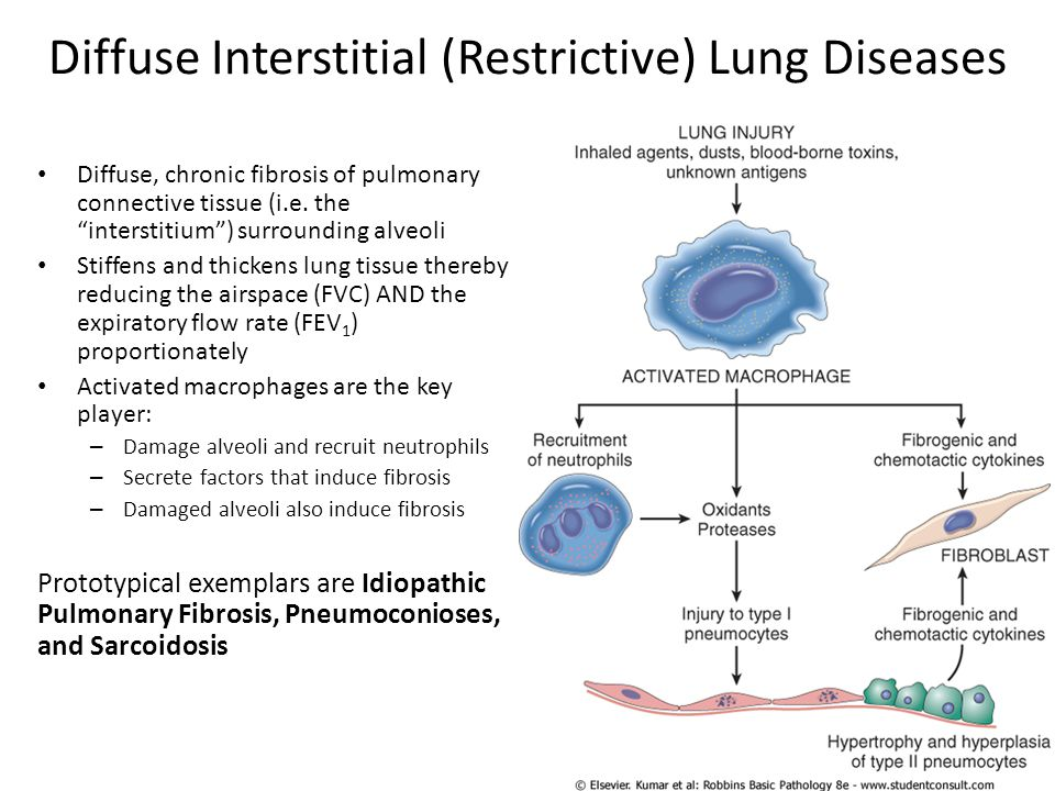 Diffuse Interstitial (Restrictive) Lung Diseases