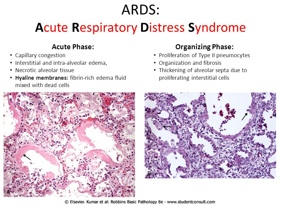 ARDS: Acute Respiratory Distress Syndrome
