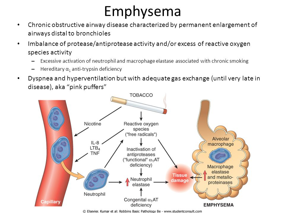 Emphysema Chronic obstructive airway disease characterized by permanent enlargement of airways distal to bronchioles.