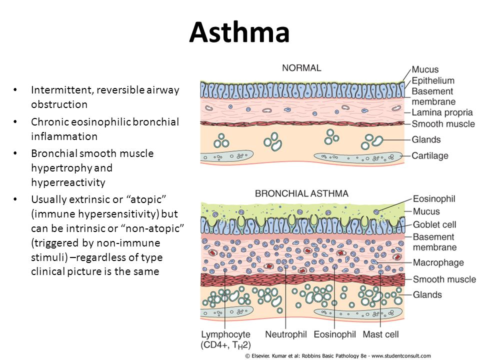 Asthma Intermittent, reversible airway obstruction