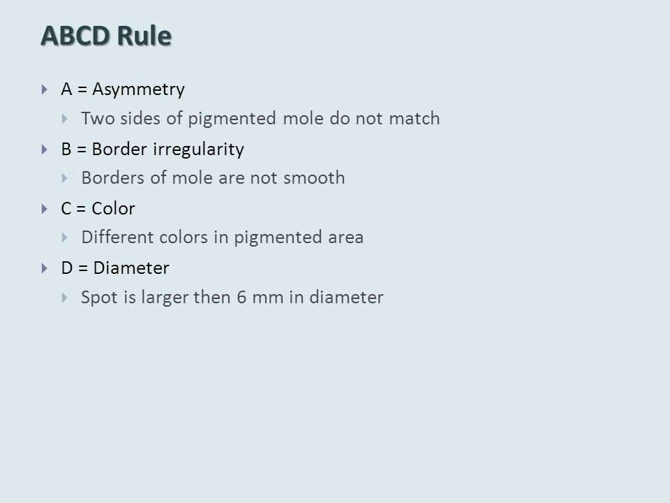 ABCD Rule A = Asymmetry Two sides of pigmented mole do not match