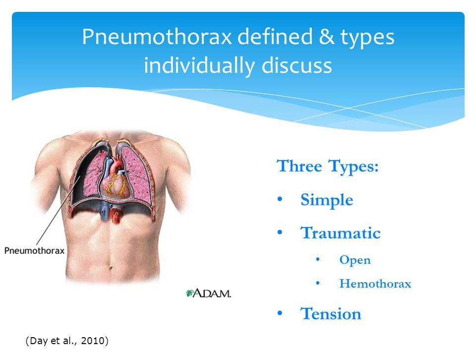 Pneumothorax defined & types individually discuss