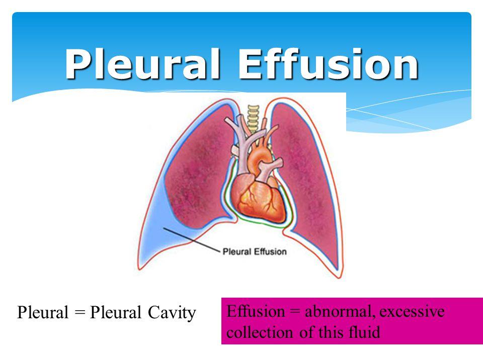 Pleural Effusion Pleural = Pleural Cavity