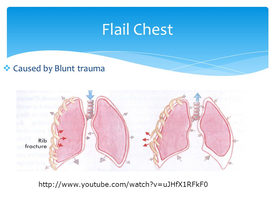 Flail Chest Caused by Blunt trauma