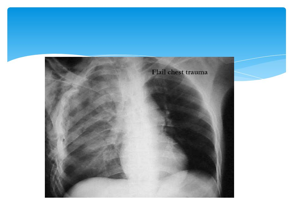 Flail chest trauma As with rib fracture, treatment of flail chest is usually supportive.