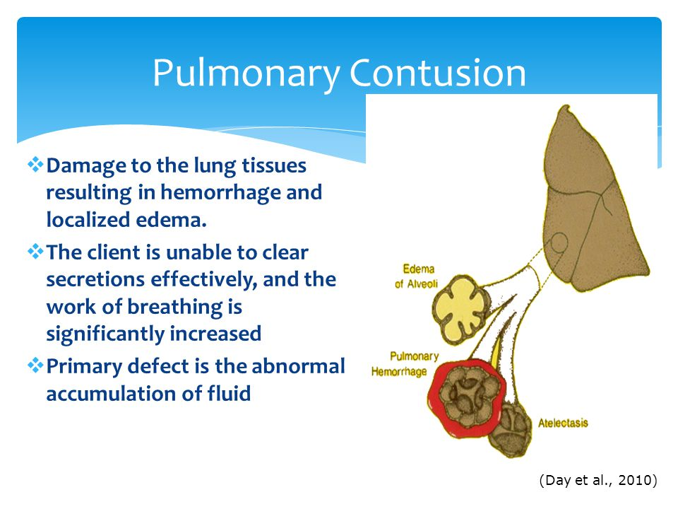 Pulmonary Contusion Damage to the lung tissues resulting in hemorrhage and localized edema.