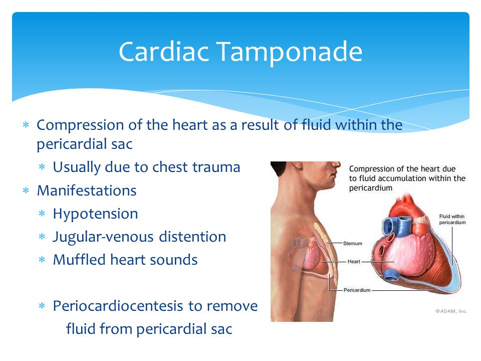 Cardiac Tamponade Compression of the heart as a result of fluid within the pericardial sac. Usually due to chest trauma.
