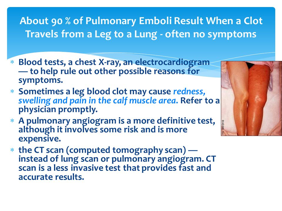 About 90 % of Pulmonary Emboli Result When a Clot Travels from a Leg to a Lung - often no symptoms