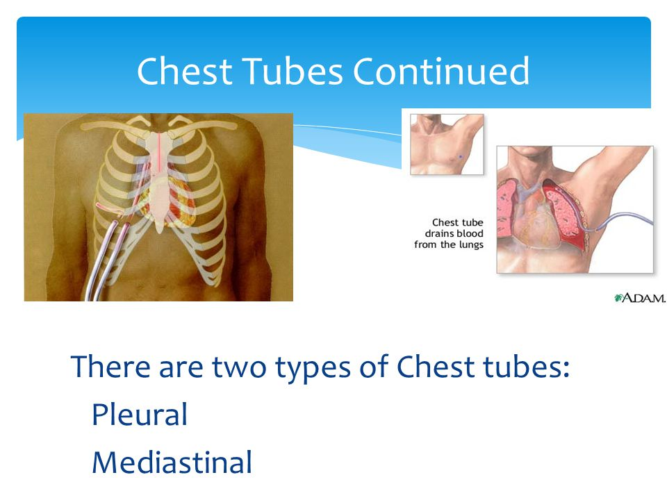 Chest Tubes Continued There are two types of Chest tubes: Pleural