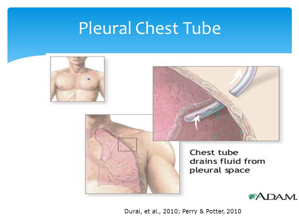 Pleural Chest Tube Durai, et al., 2010; Perry & Potter, 2010
