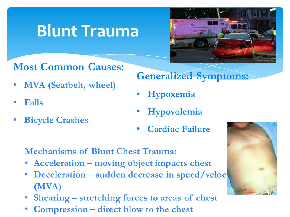 Blunt Trauma Most Common Causes: Generalized Symptoms: