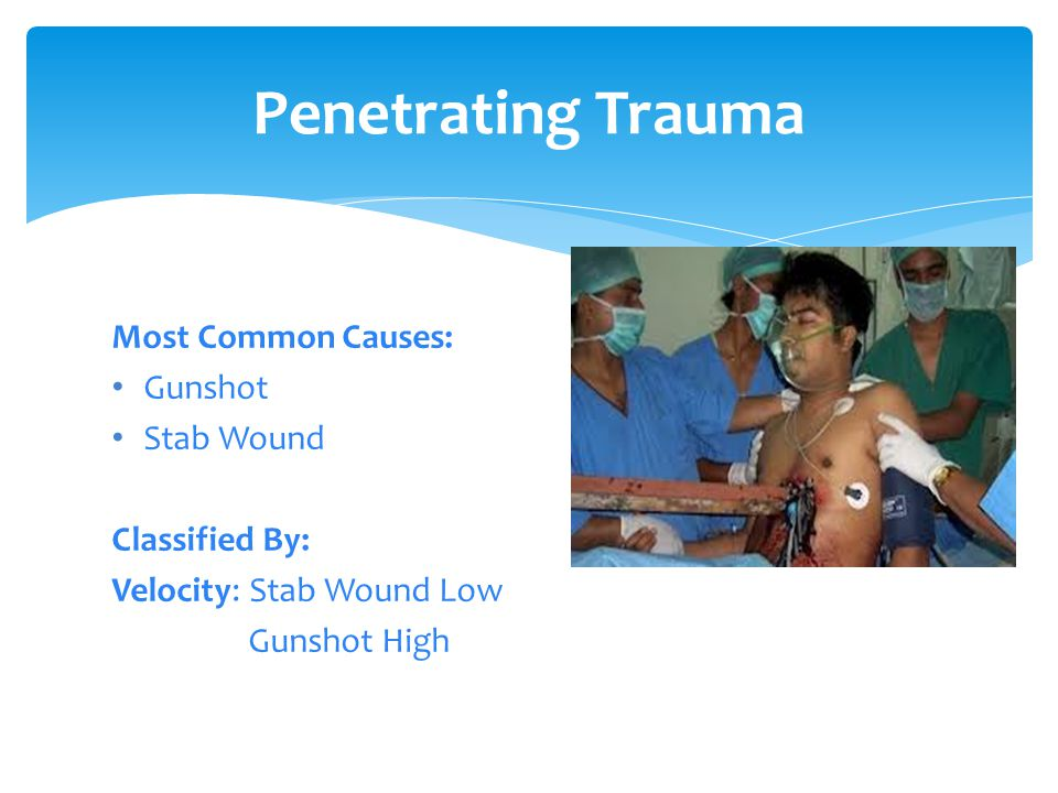 Penetrating Trauma Most Common Causes: Gunshot Stab Wound