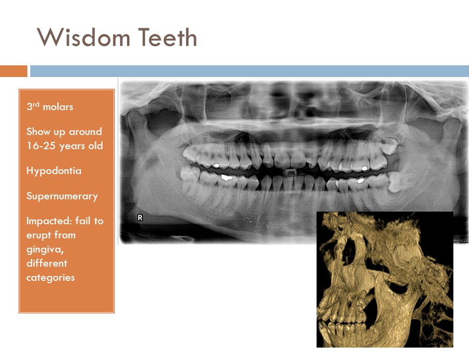 Wisdom Teeth 3rd molars Show up around 16-25 years old Hypodontia