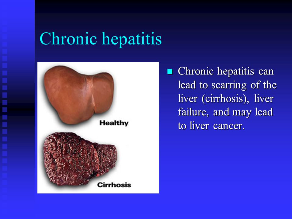 Chronic hepatitis Chronic hepatitis can lead to scarring of the liver (cirrhosis), liver failure, and may lead to liver cancer.