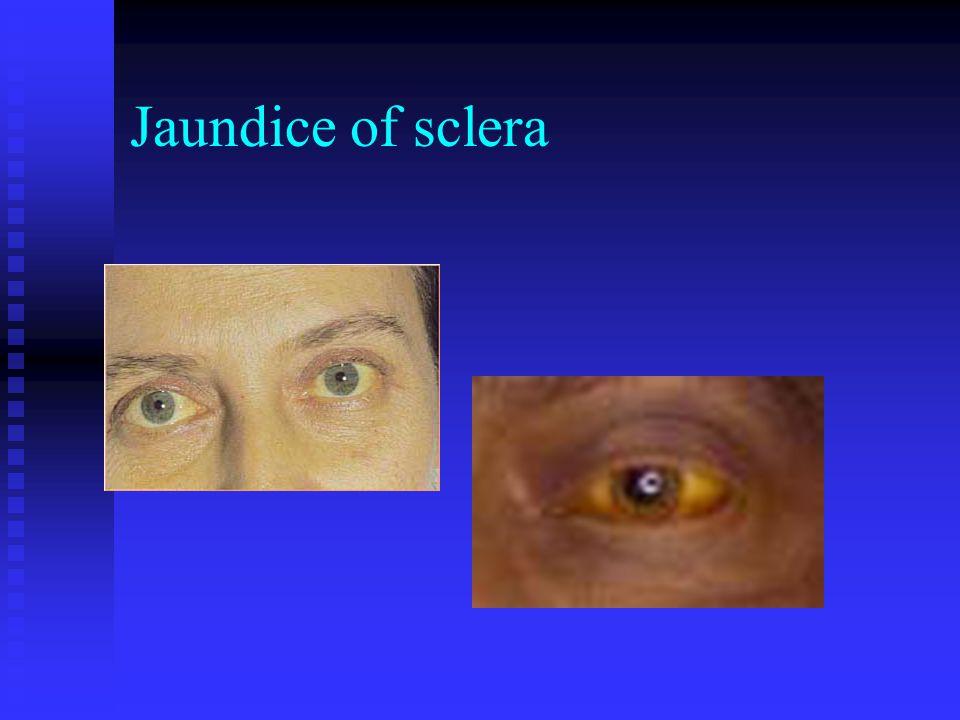 Jaundice of sclera