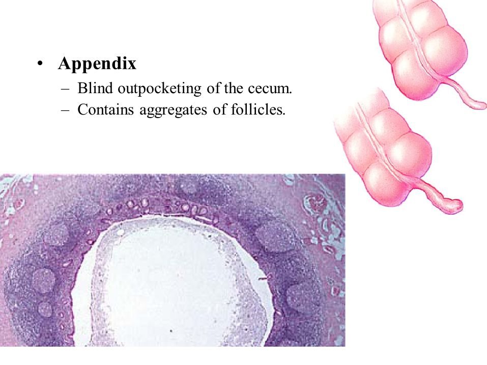 • Appendix – Blind outpocketing of the cecum.
