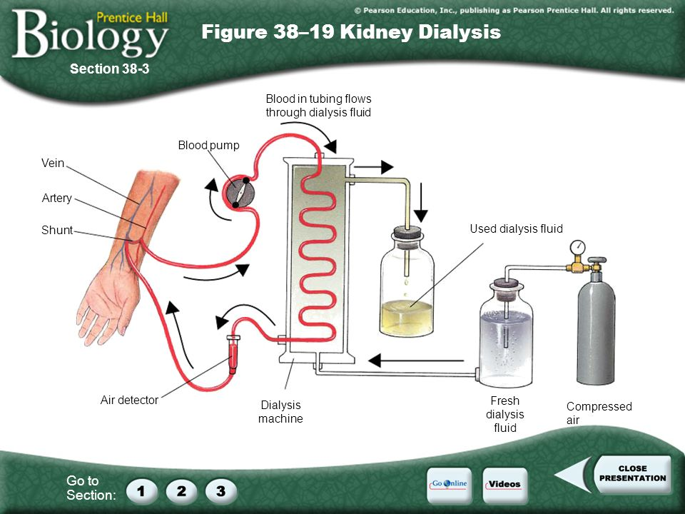 Figure 38–19 Kidney Dialysis