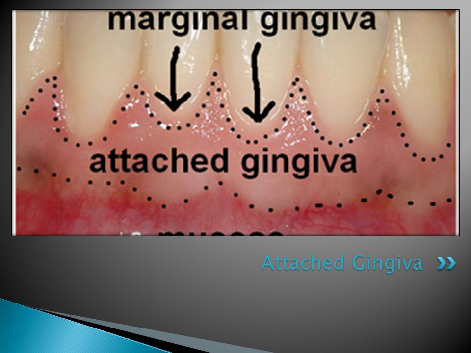 Attached Gingiva
