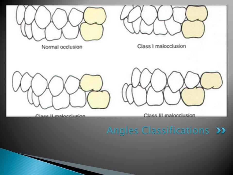 Angles Classifications