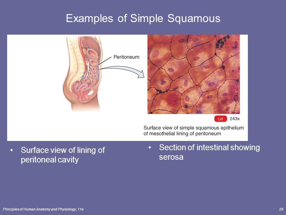 Examples of Simple Squamous