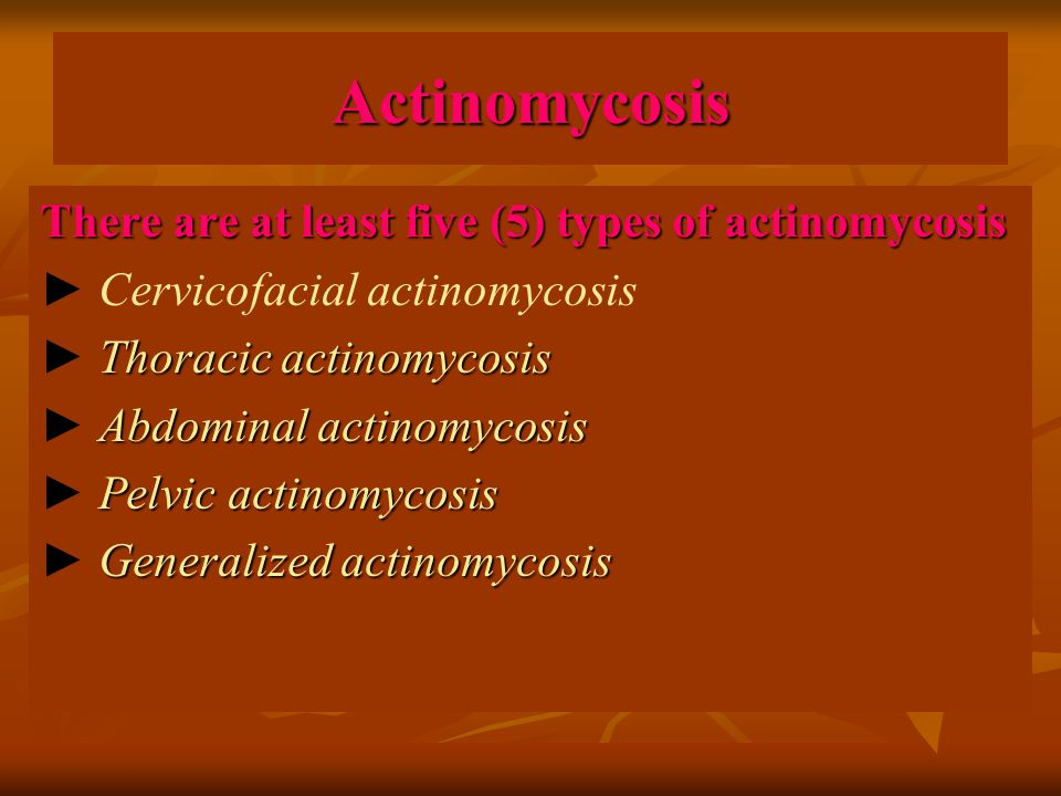 Actinomycosis There are at least five (5) types of actinomycosis