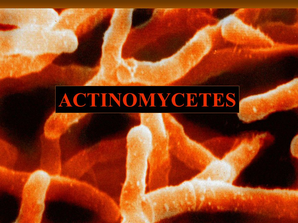 ACTINOMYCETES Actinomyces sp
