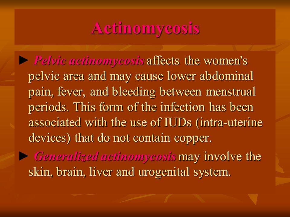 Actinomycosis