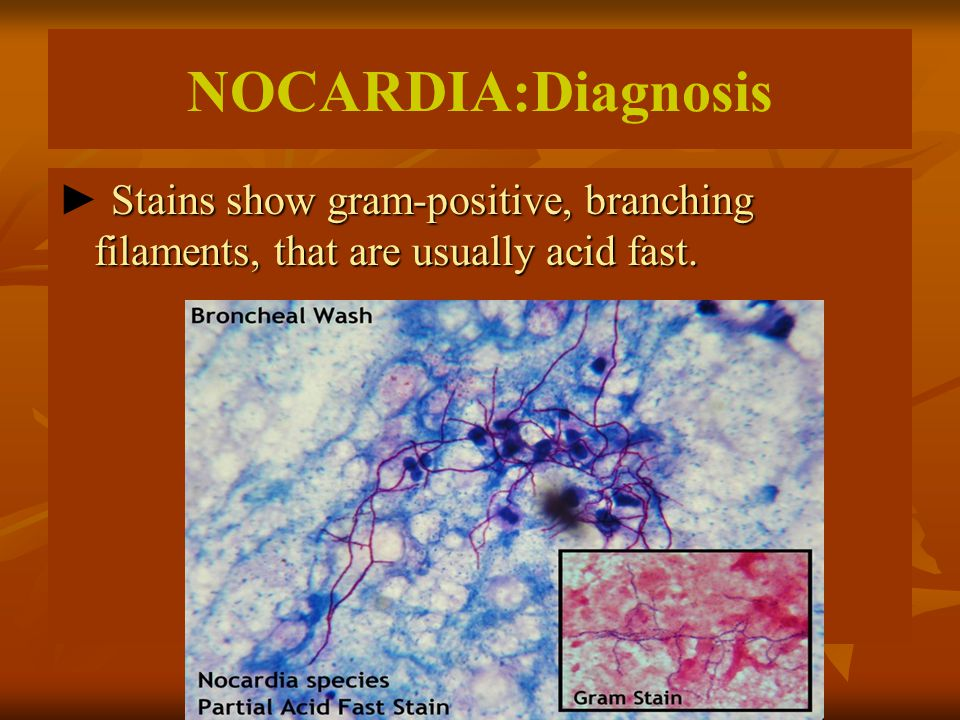 NOCARDIA:Diagnosis ► Stains show gram-positive, branching filaments, that are usually acid fast.