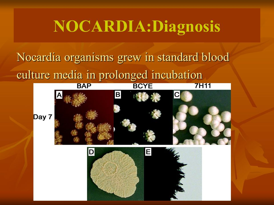 NOCARDIA:Diagnosis Nocardia organisms grew in standard blood