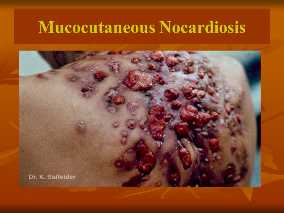 Mucocutaneous Nocardiosis