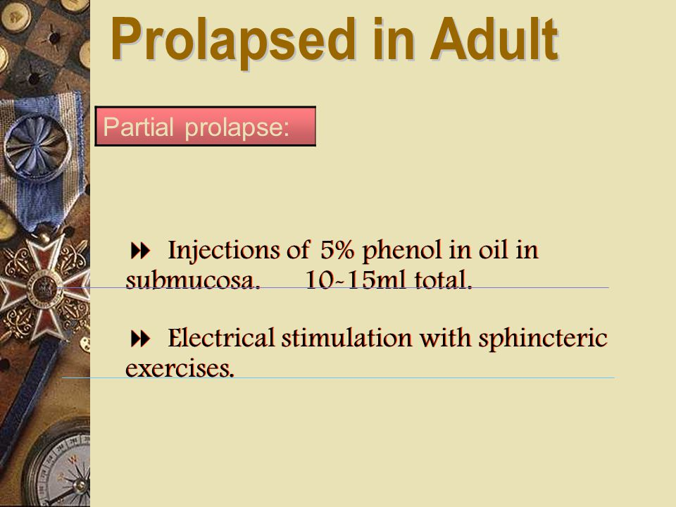 Prolapsed in Adult Partial prolapse:  Injections of 5% phenol in oil in submucosa. 10-15ml total.