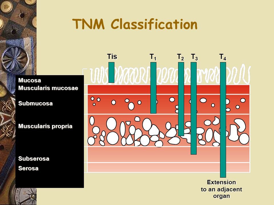 TNM Classification Extension Tis T1 T2 T3 T4 Mucosa Muscularis mucosae