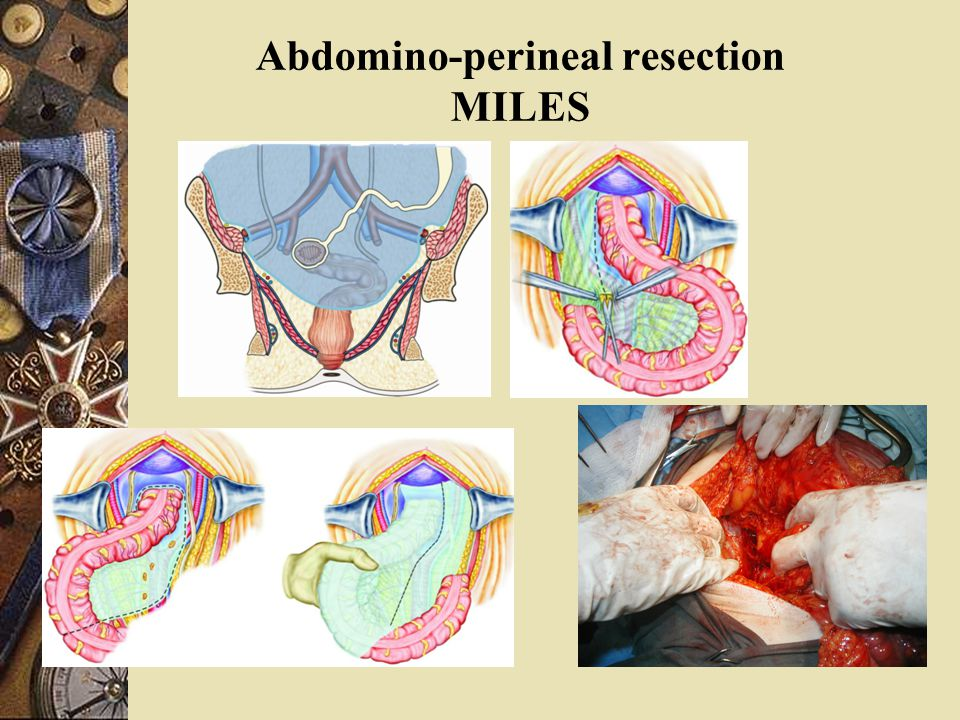 Abdomino-perineal resection MILES