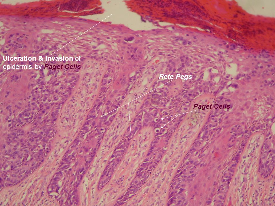 Ulceration & Invasion of epidermis by Paget Cells