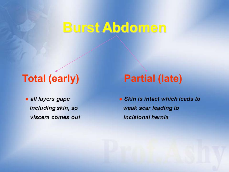 Burst Abdomen Total (early) Partial (late)