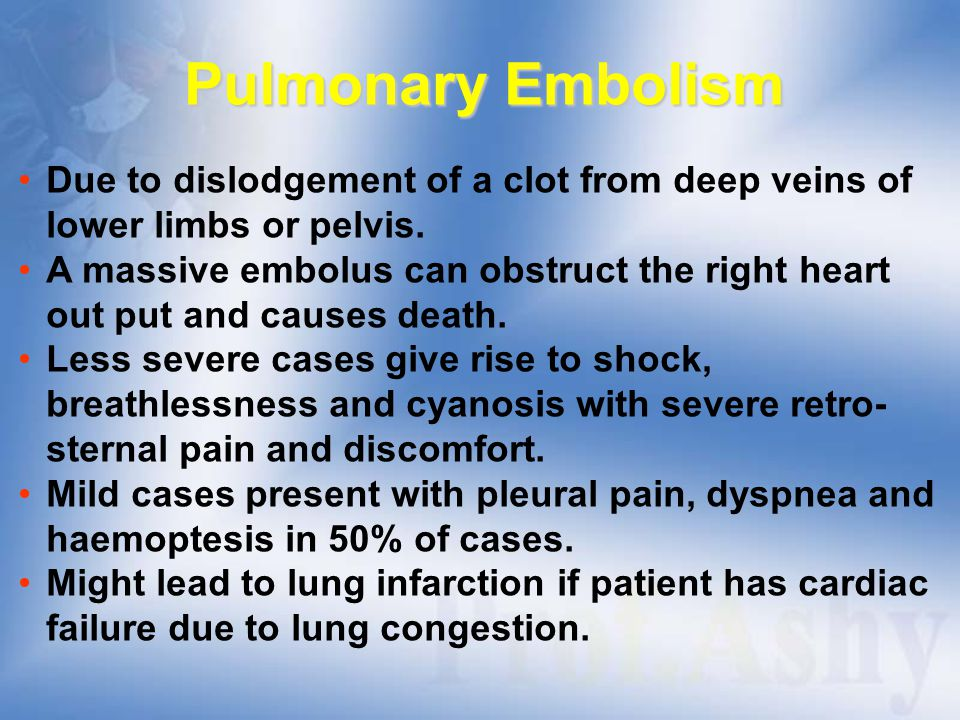 Pulmonary Embolism Due to dislodgement of a clot from deep veins of lower limbs or pelvis.