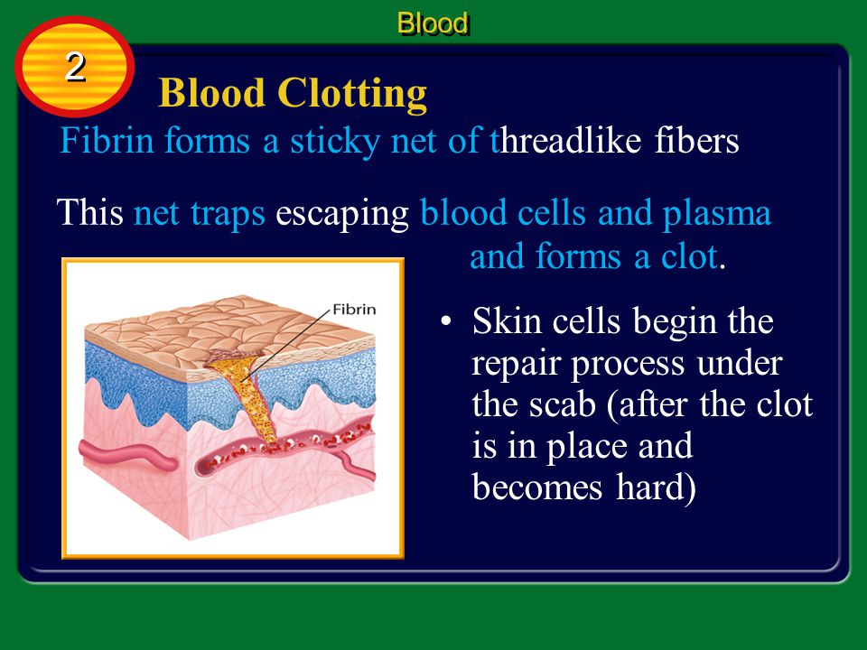 Blood Clotting 2 Fibrin forms a sticky net of threadlike fibers