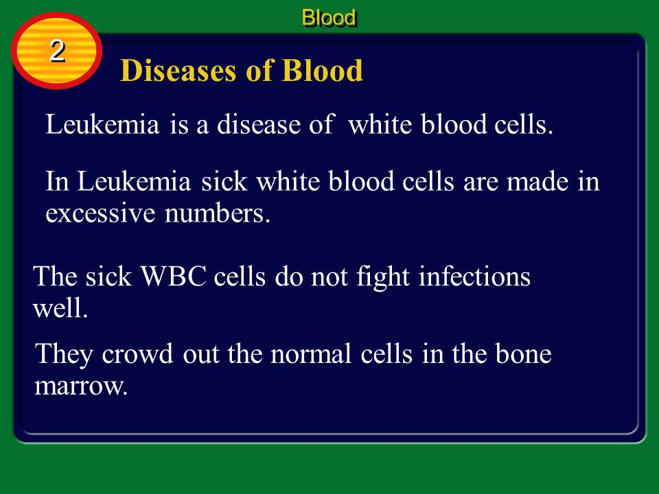 Diseases of Blood 2 Leukemia is a disease of white blood cells.