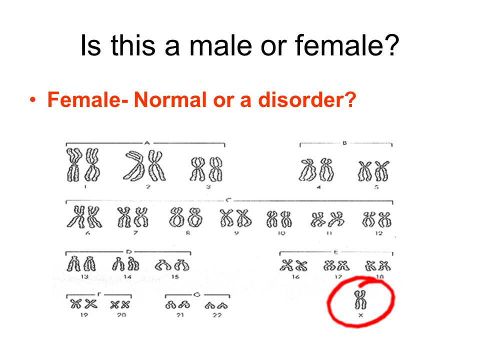Is this a male or female Female- Normal or a disorder